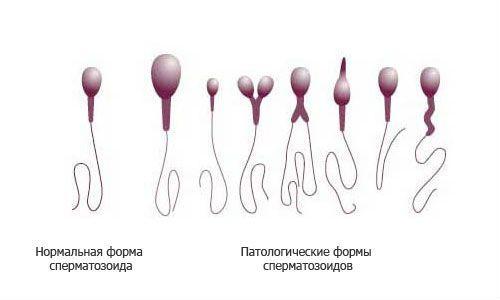 Морфология сперматозоидов