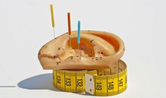 Иглоукалывание и вес
