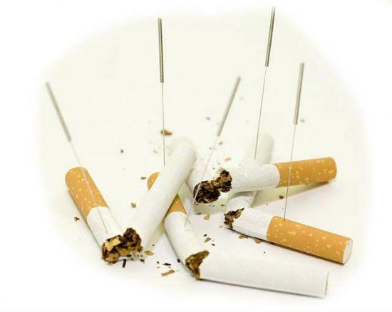 Иглоукалывание от курения