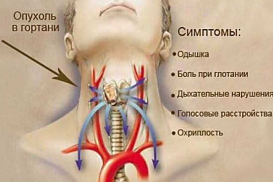Опухоль в гортани