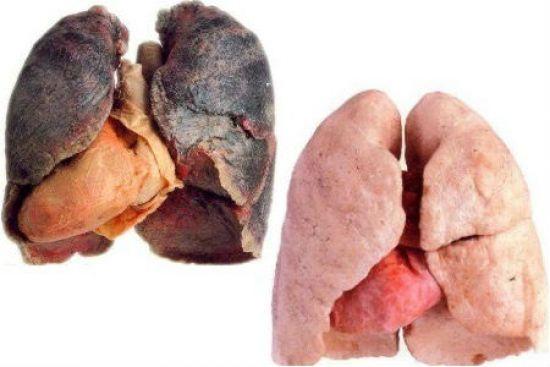Легкие здорового человека и курильщика