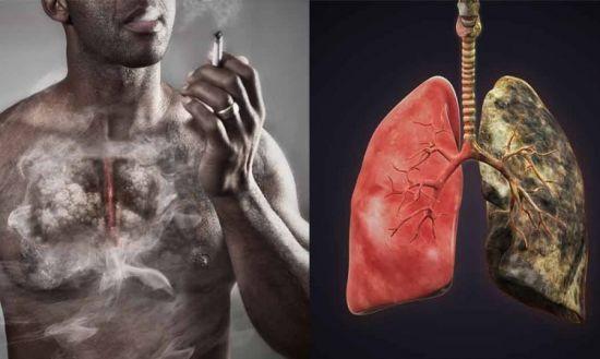 Влияние курения на легкие