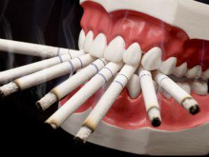 Сигареты и зубы