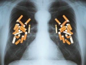 Легкие и сигареты